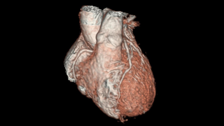 Трехмерная визуализация сердца у детей